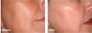 Before and after skin resurfacing