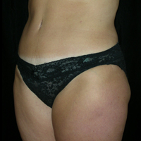 Abdominoplasty after photos