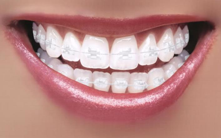 Benefits of Braces