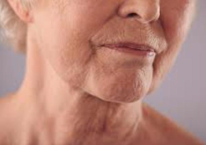 Dry Skin and Aging