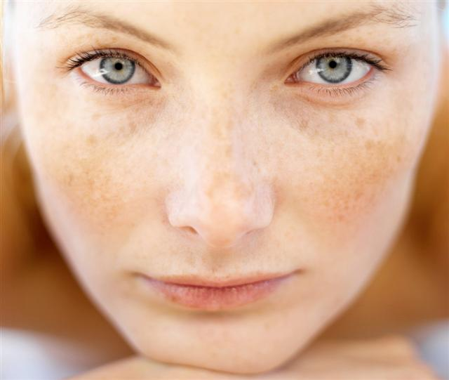How to Treat Sun Spots Laser therapy