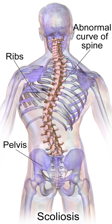 scoliosis spinal deformity